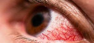 Красные глаза при гипертонии