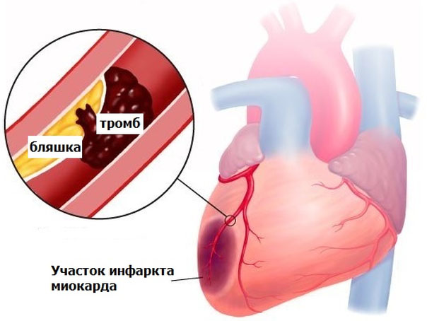 Можно ли стать донором при гипертонии