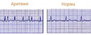 Изображение - Сердцебиение при нормальном пульсе и давлении aritmia-3-300x115