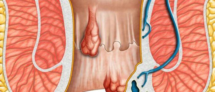 Повышенное артериальное давление геморрой
