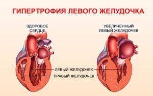 Лозап препарат от давления