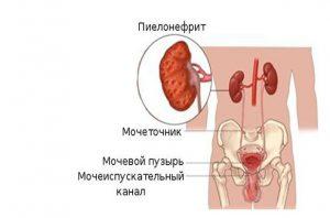 Из за ангины может повысится давление