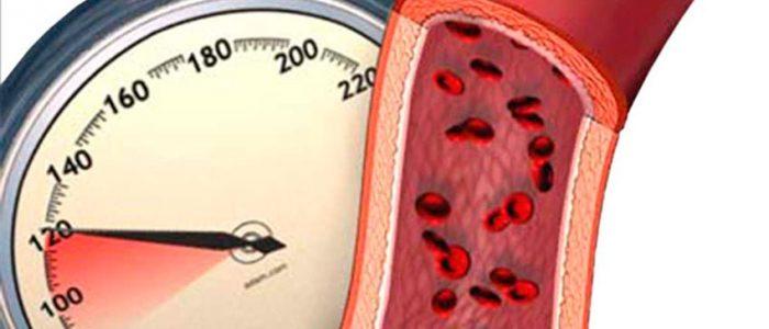 Изображение - Самочувствие при повышенном давлении povishennoe-davlenie-1-700x300