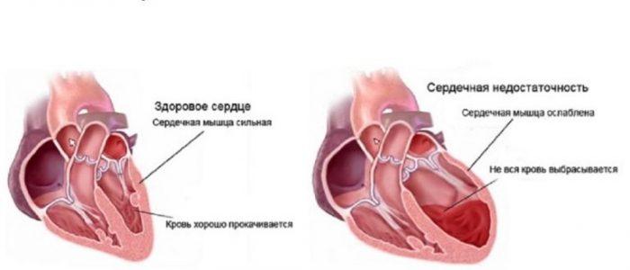 Снижение давления при сердечной недостаточности -
