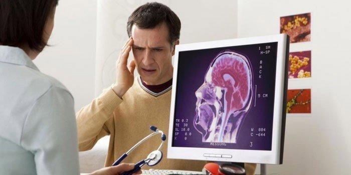 Стероиды при внутричерепном давлении