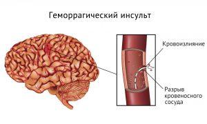 Эуфиллин и артериальное давление