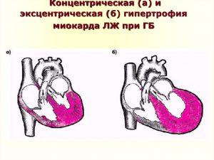 Что значит гипертрофия левого желудочка сердца